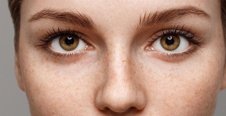 Como quitar manchas de sol en la cara con productos naturales